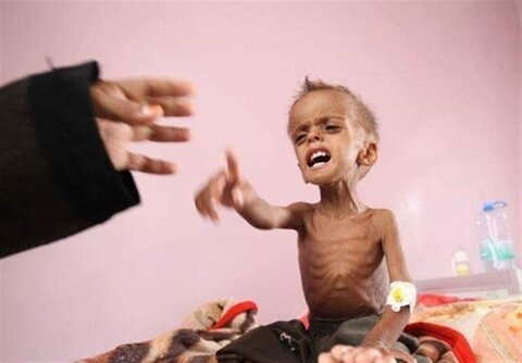 Saudi war on Yemen killed over 3,600 children, paralyzed 800