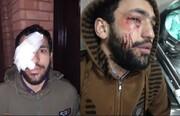 مزاحم نوامیس مردم به طلبه جهادی «چاقو» زد+ عکس