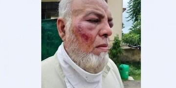ضرب و شتم پیرمرد مسلمان از سوی هندوهای افراطی