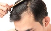 نسخه ضخیم شدن مو با طب سنتی
