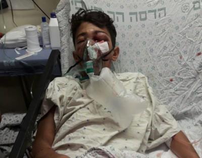 نوجوان فلسطینی بینایی چشم خود را از دست داد