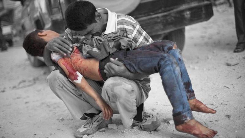 حمله سعودی ها به کودکان یمنی