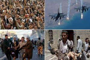 تنها راه نجات یمن مقاومت و استقامت است/حمله به مردم یمن با حمایت آمریکا صورت می گیرد